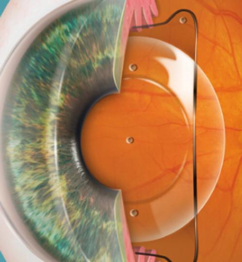 ojos ICL2